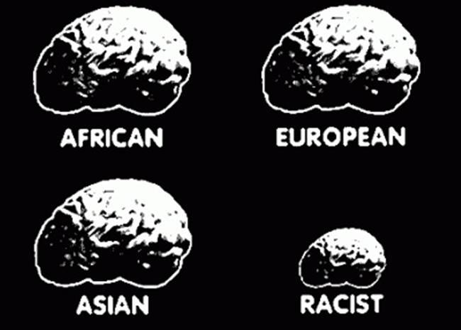 rasszista