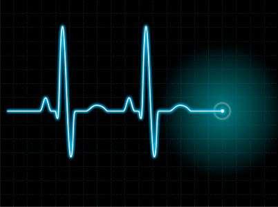 sok a szív- és érrendszeri betegség